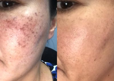 Acne Skin Rejuvenation