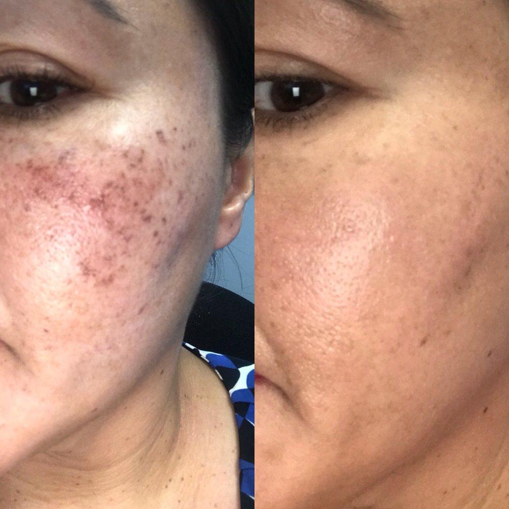 Acne Scar Treatment Microneedling With Prp Dermatologist Tarzana