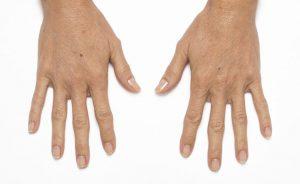 radiesse-hands